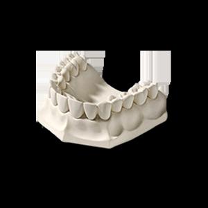 Гипс стоматологический Arti-base 60 (белый) фото